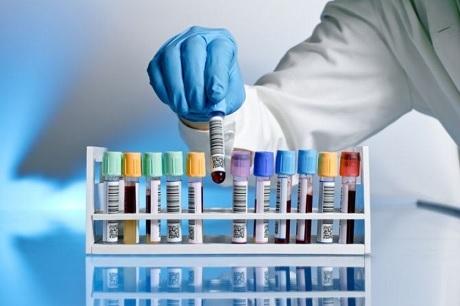 Красные выделения, но не месячные: причины и лечение