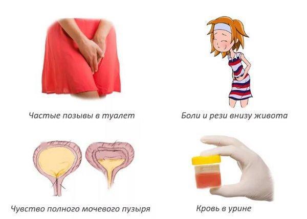 Почему больно писать при месячных: причины и лечение
