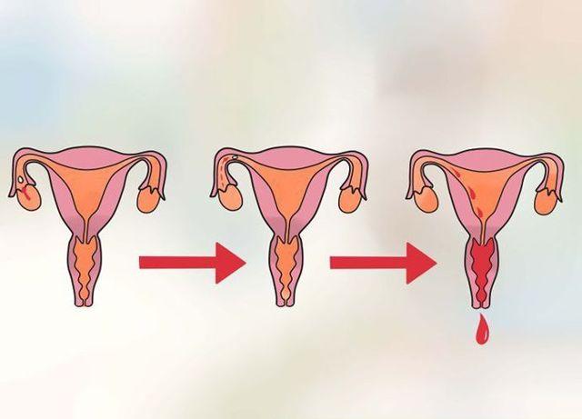 Утрожестан и задержка месячных: влияние на менструальный цикл