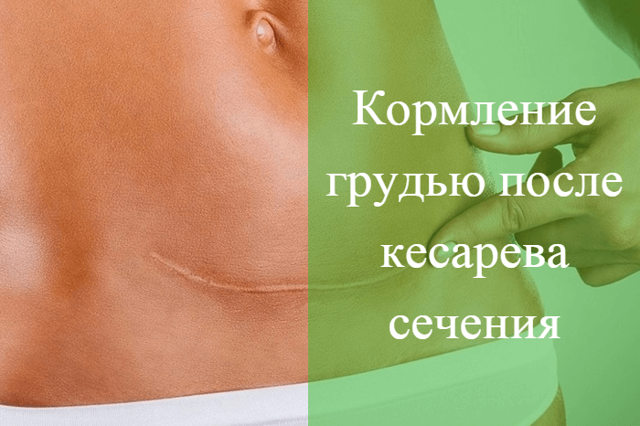 Обильные месячные после кесарева: норма или патология