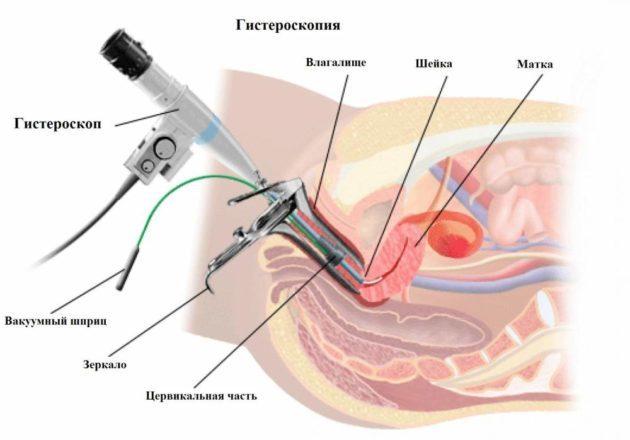 Кровянистые выделения между месячными: причины и лечение
