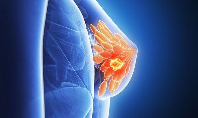 Месячные прошли, а грудь болит: причины, опасные симптомы