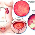 Молочница во время месячных: симптомы, как лечить