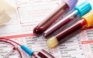 17 он прогестерон: показания к анализу, нормальные значения