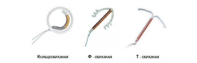 огда ставят спираль: до или после месячных, особенности процесса