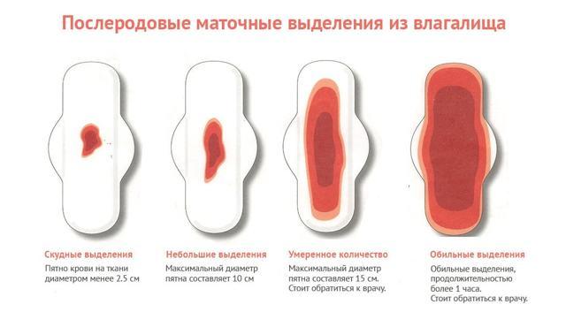 Прокладки послеродовые: какие лучше и как выбирать