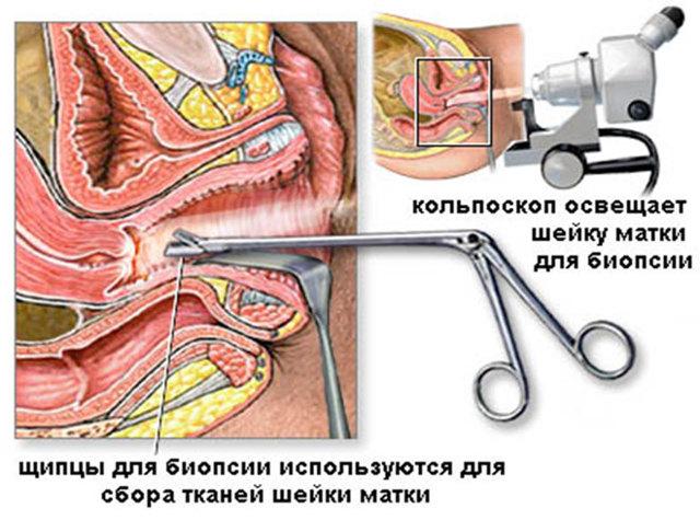 Кольпоскопия: что это такое в гинекологии, показания, как проводится