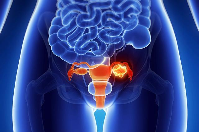 Почему болит низ живота при месячных: патология или норма