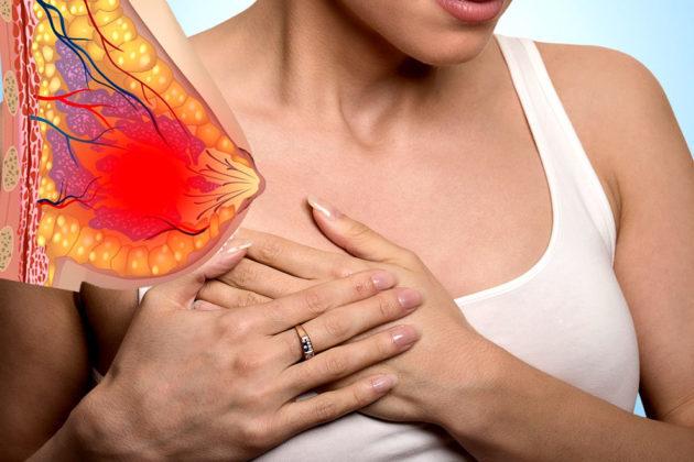 Болит грудь и задержка месячных: причины, норма или патология