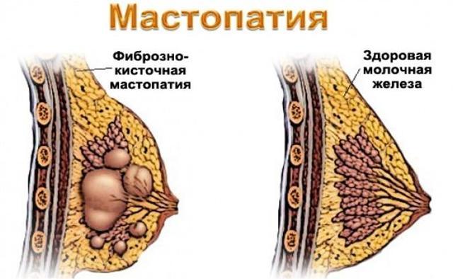 Болит грудь во время овуляции: причины, стоит ли волноваться