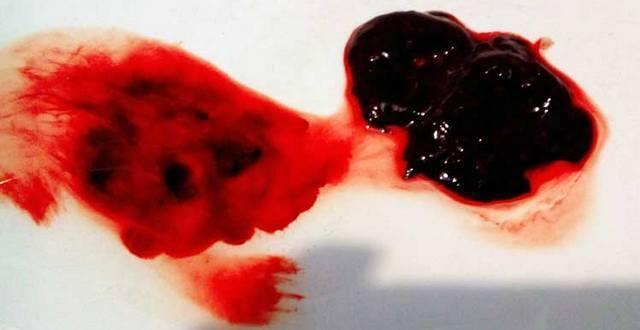 Очень обильные месячные со сгустками: как остановить и причины
